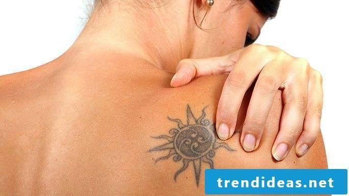 Remove tattoo without laser