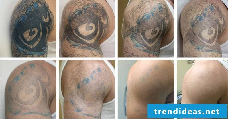 Tattoo removal result
