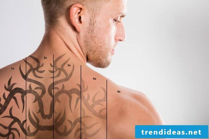 Tattoo laser removal phases